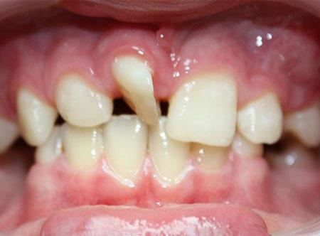 do-lechenia-u-ortodonta-v-Doctor-Dobryakov.jpg